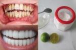 Răng trắng sáng như sứ nhờ dùng muối hạt