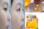 Truy tìm cách điều trị mụn ẩn dưới da hiệu quả nhất mọi thời đại hay áp dụng