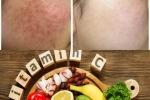 Dùng vitamin C trị thâm mụn theo cách này làn da trở nên trắng mịn đến không ngờ
