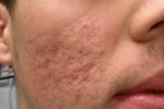 Khoa học đã chứng minh tắm rửa hàng ngày vừa không tốt cho da lại rước thêm bệnh