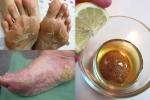 Cả mùa đông không lo chân nứt nẻ hay bị nhiễm trùng đau rát nhờ làm điều này trong 1 phút