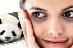 10 cách giúp làm tan quầng thâm dưới mắt ít tốn kém nhất