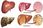 Khỏi gan nhiễm mỡ nhờ uống loại NƯỚC ÉP HỖN HỢP này trong vòng 3 tháng