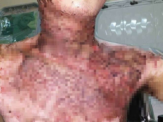 Cãi nhau với vợ, chồng tưới xăng khắp nhà, bén lửa bếp gas khiến cả gia đình và con trai 2 tuổi bị bỏng nặng - Ảnh 4