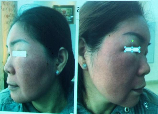 Cảnh báo: Ham làm đẹp cấp tốc, người phụ nữ tự ý bôi thuốc đông y khiến gương mặt sưng đỏ, nổi vảy kinh hoàng - Ảnh 1