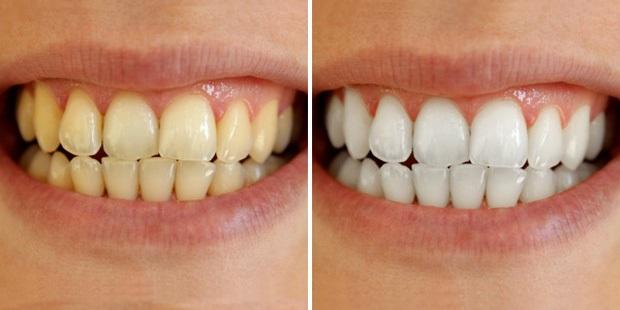 Cao răng lâu năm đến mấy cũng bong ra từng mảng, chấm dứt hôi miệng đến bất ngờ chỉ trong 5 phút! - Ảnh 1