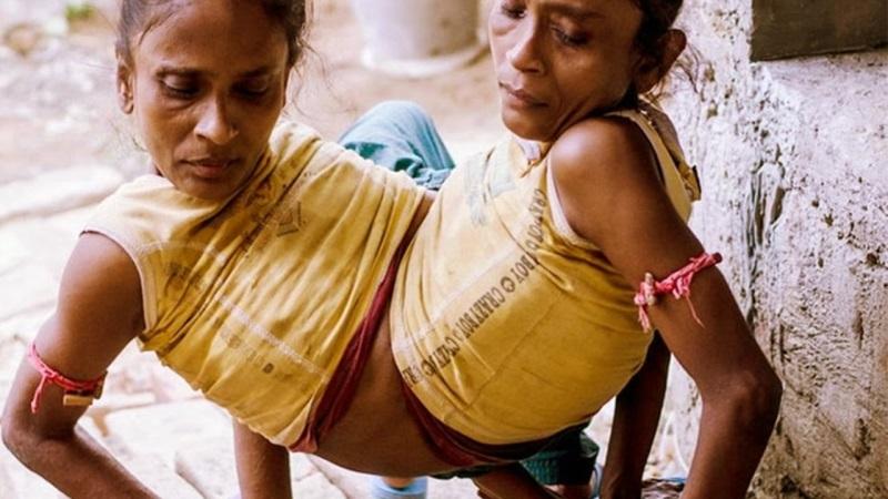 Cặp chị em song sinh dính liền mông, không có hậu môn - Ảnh 2