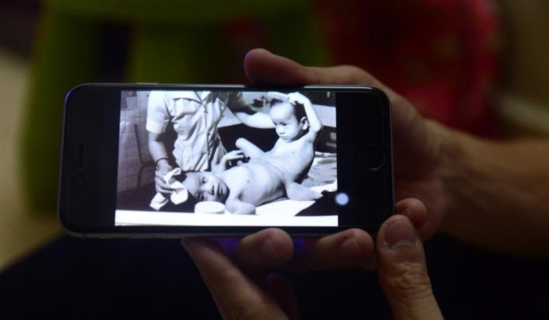 Hình ảnh của hai anh em song sinh Việt - Đức. Ảnh: Internet