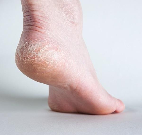 Mẹo trị nứt gót chân siêu nhanh tại nhà