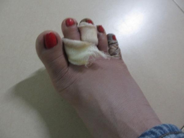 Ghen tuông mù quáng, chồng chích điện dã man khiến vợ suýt chết, phải cắt bỏ hai ngón chân - Ảnh 1