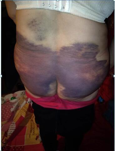 Căm phẫn: Vợ bị chồng bạo hành suốt 25 năm, hàng ngày làm 'nô lệ' phục vụ cho cô nhân tình - Ảnh 2