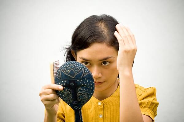Chữa rụng tóc sau sinh là điều khiến nhiều người quan tâm