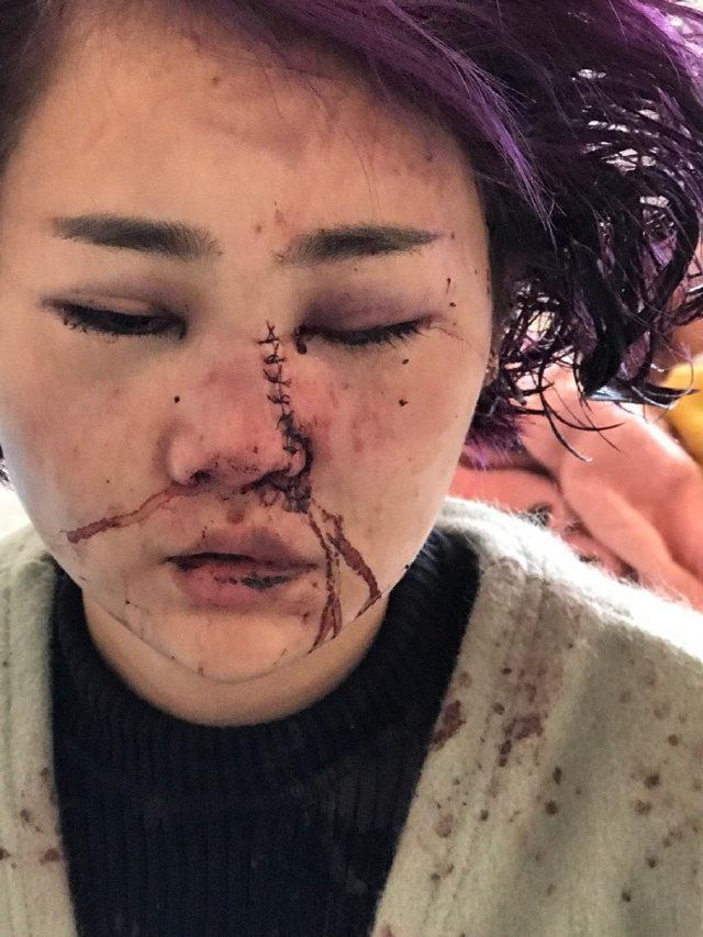 Căm phẫn: Kẻ đánh đập dã man, rạch nát mặt cô gái trẻ chỉ lãnh...1 năm tù! - Ảnh 2