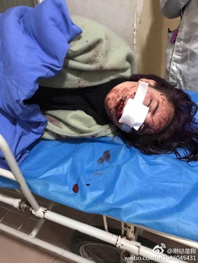 Căm phẫn: Kẻ đánh đập dã man, rạch nát mặt cô gái trẻ chỉ lãnh...1 năm tù! - Ảnh 4