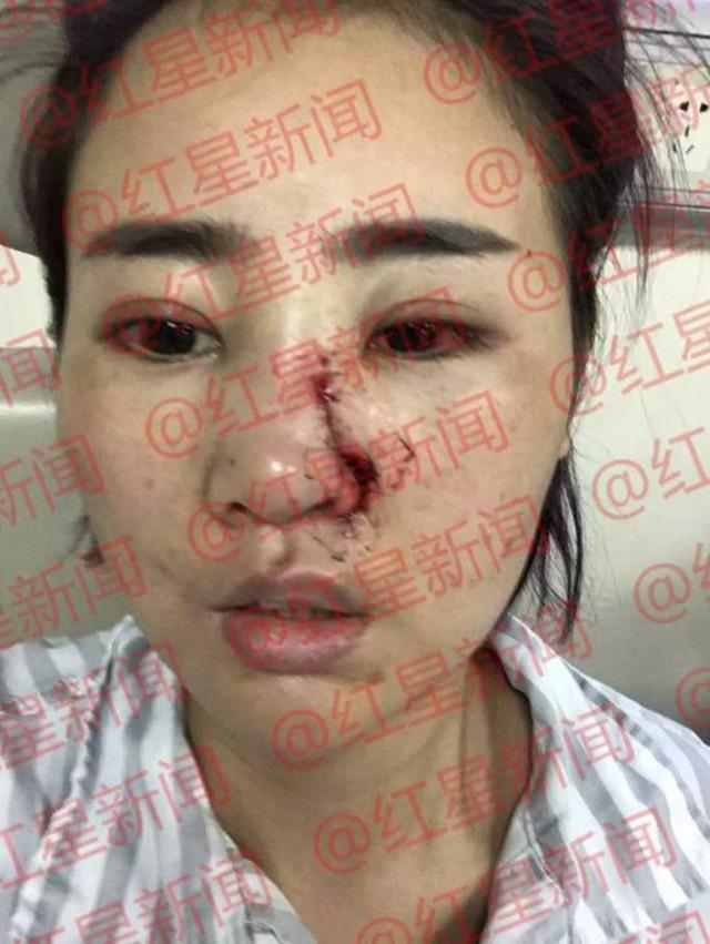Căm phẫn: Kẻ đánh đập dã man, rạch nát mặt cô gái trẻ chỉ lãnh...1 năm tù! - Ảnh 5