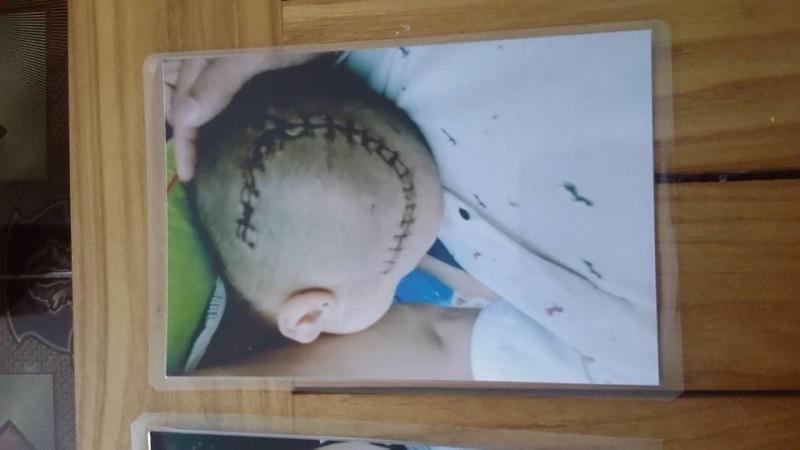 Bé trai 3 tuổi bị xuất huyết não ở trường mầm non: Cô giáo giải thích