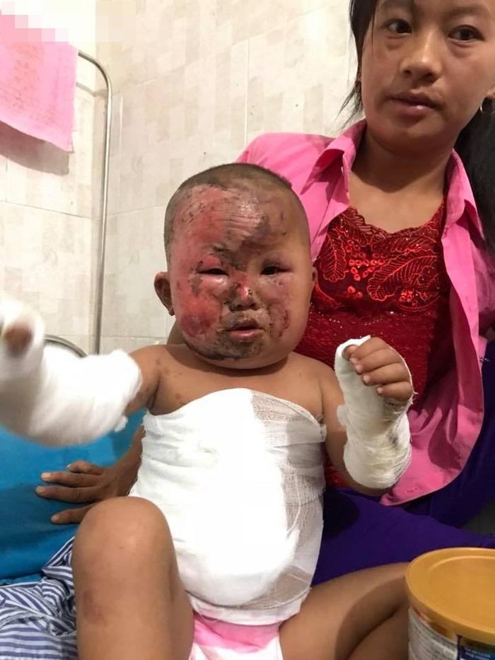Nỗi đau đớn khủng khiếp của em bé H'Mông 3 tuổi chui ra từ đống cỏ khô đang cháy sau phút lơ là của người mẹ trẻ - Ảnh 4