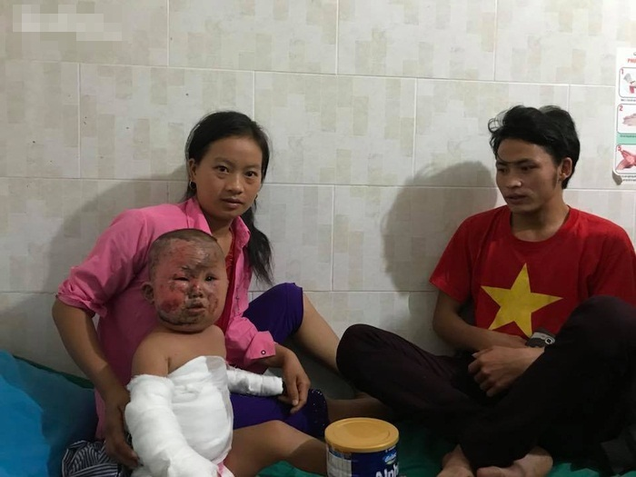 Nỗi đau đớn khủng khiếp của em bé H'Mông 3 tuổi chui ra từ đống cỏ khô đang cháy sau phút lơ là của người mẹ trẻ - Ảnh 3
