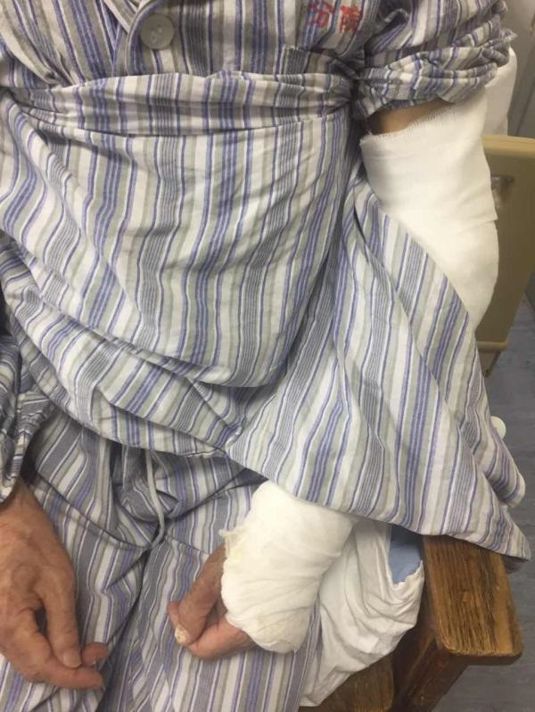 Phẫn nộ: Sơ ý làm đổ cơm, cụ ông U90 bị con trai đánh đập tàn nhẫn khi đang trên giường bệnh - Ảnh 1