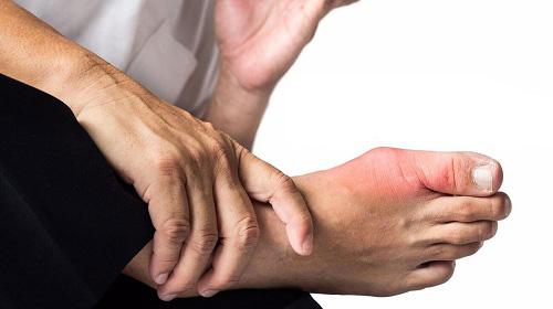 Viêm khớp ngón chân cái: Không chỉ là dấu hiệu của bệnh gout - Ảnh 4