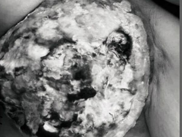Hoại tử vú vì ăn thực dưỡng chữa ung thư theo lời đồn trên mạng - Ảnh 1