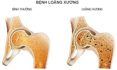 Độ tuổi thích hợp bổ sung canxi để phòng ngừa loãng xương - Ảnh 2