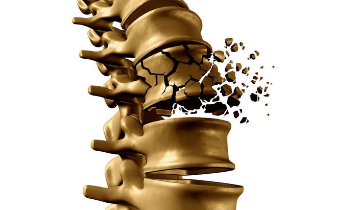 Độ tuổi thích hợp bổ sung canxi để phòng ngừa loãng xương - Ảnh 4