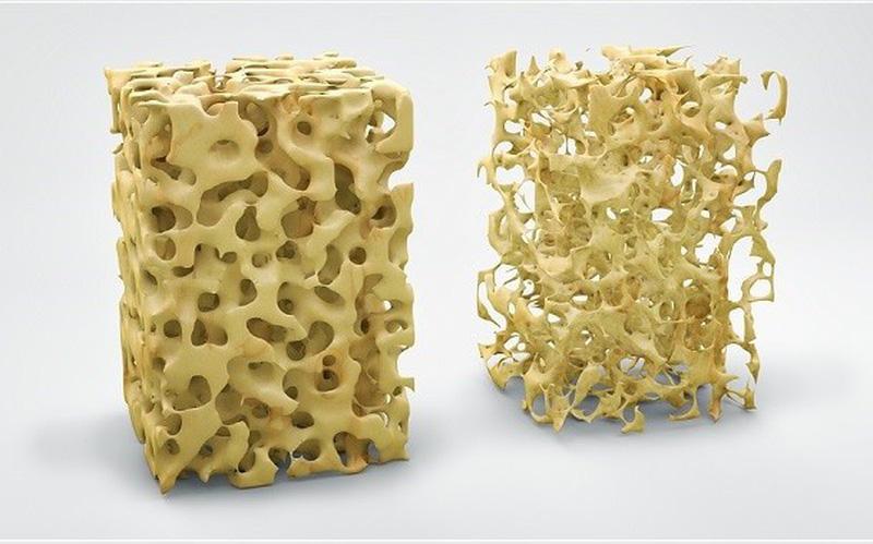 Độ tuổi thích hợp bổ sung canxi để phòng ngừa loãng xương - Ảnh 5