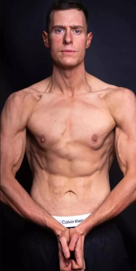 'Người đàn ông xui xẻo nhất thế giới' lột xác nhờ giảm gần 60 kg - Ảnh 3