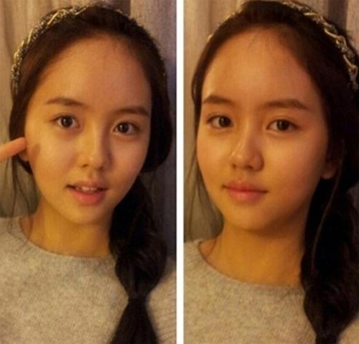 Mặt mộc xinh đẹp của 5 diễn viên nhí dậy thì thành công nhất showbiz Hàn - Ảnh 7