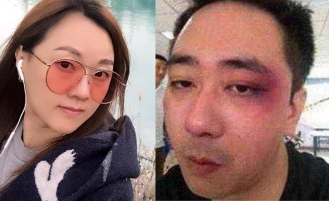 Nam diễn viên Trung Quốc 8 lần nhập viện vì bị vợ đánh đập - Ảnh 1