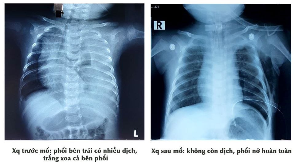 Căn bệnh hiếm khiến phổi bé trai chứa đầy dịch đục như sữa - Ảnh 1
