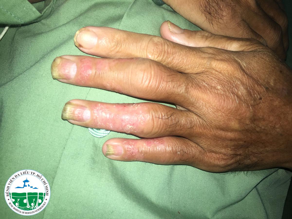 Nhiều bệnh nhân vảy nến bị phá hủy khớp do trót tin phòng khám Trung Quốc - Ảnh 2