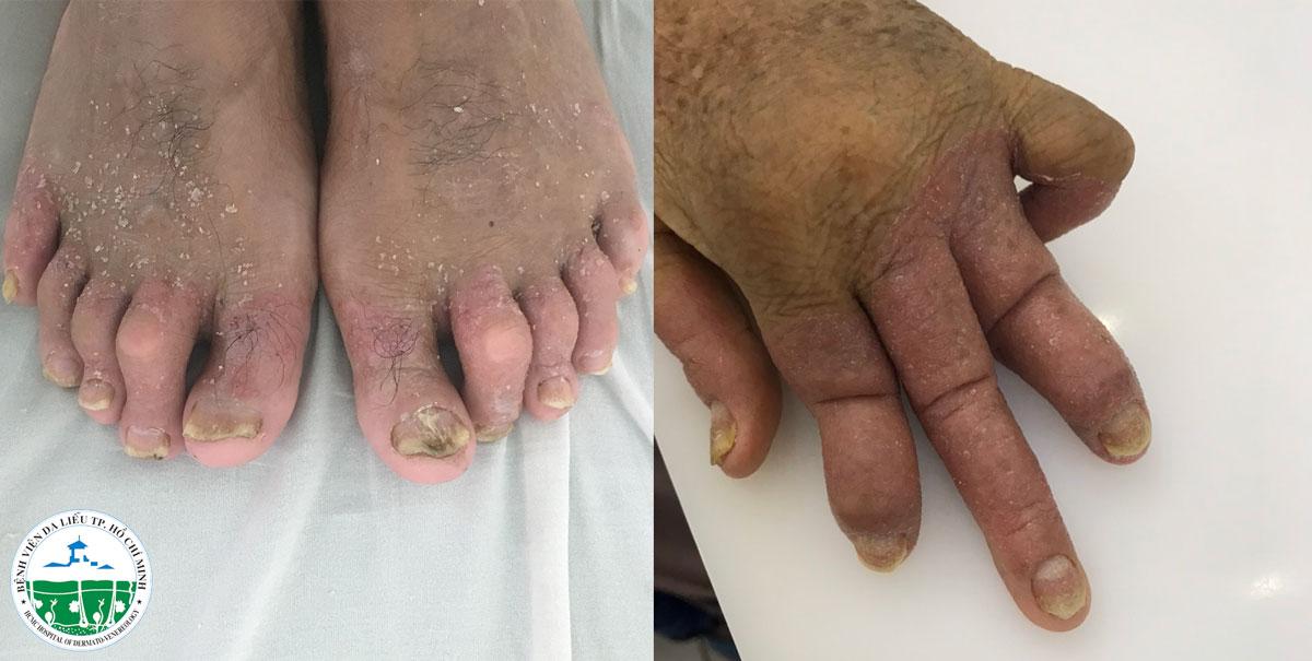 Nhiều bệnh nhân vảy nến bị phá hủy khớp do trót tin phòng khám Trung Quốc - Ảnh 1