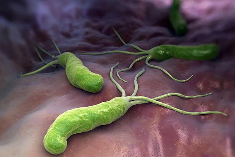Vi khuẩn HP sống ở dạ dày: Không đáng sợ như bạn vẫn nghĩ vì những lý do này - Ảnh 1