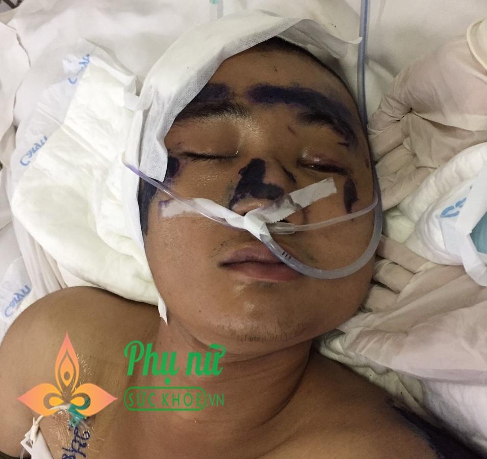 Bệnh viện Quân y 175 tìm người thân cho nam thanh niên bị tai nạn giao thông, chấn thương sọ não, tính mạng nguy kịch - Ảnh 1
