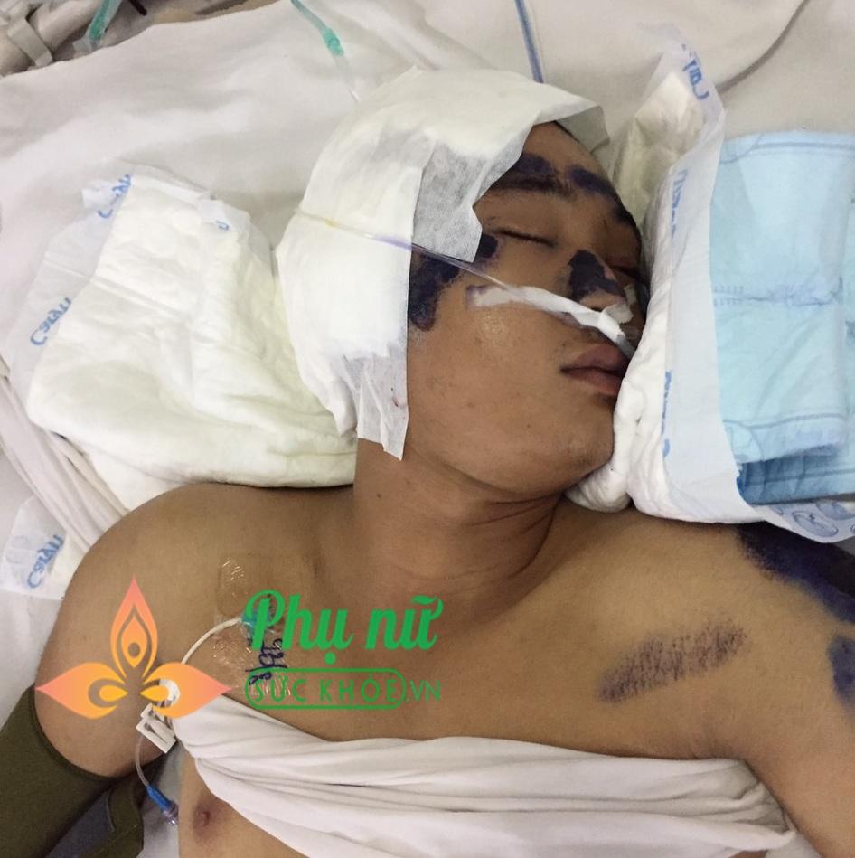 Bệnh viện Quân y 175 tìm người thân cho nam thanh niên bị tai nạn giao thông, chấn thương sọ não, tính mạng nguy kịch - Ảnh 2
