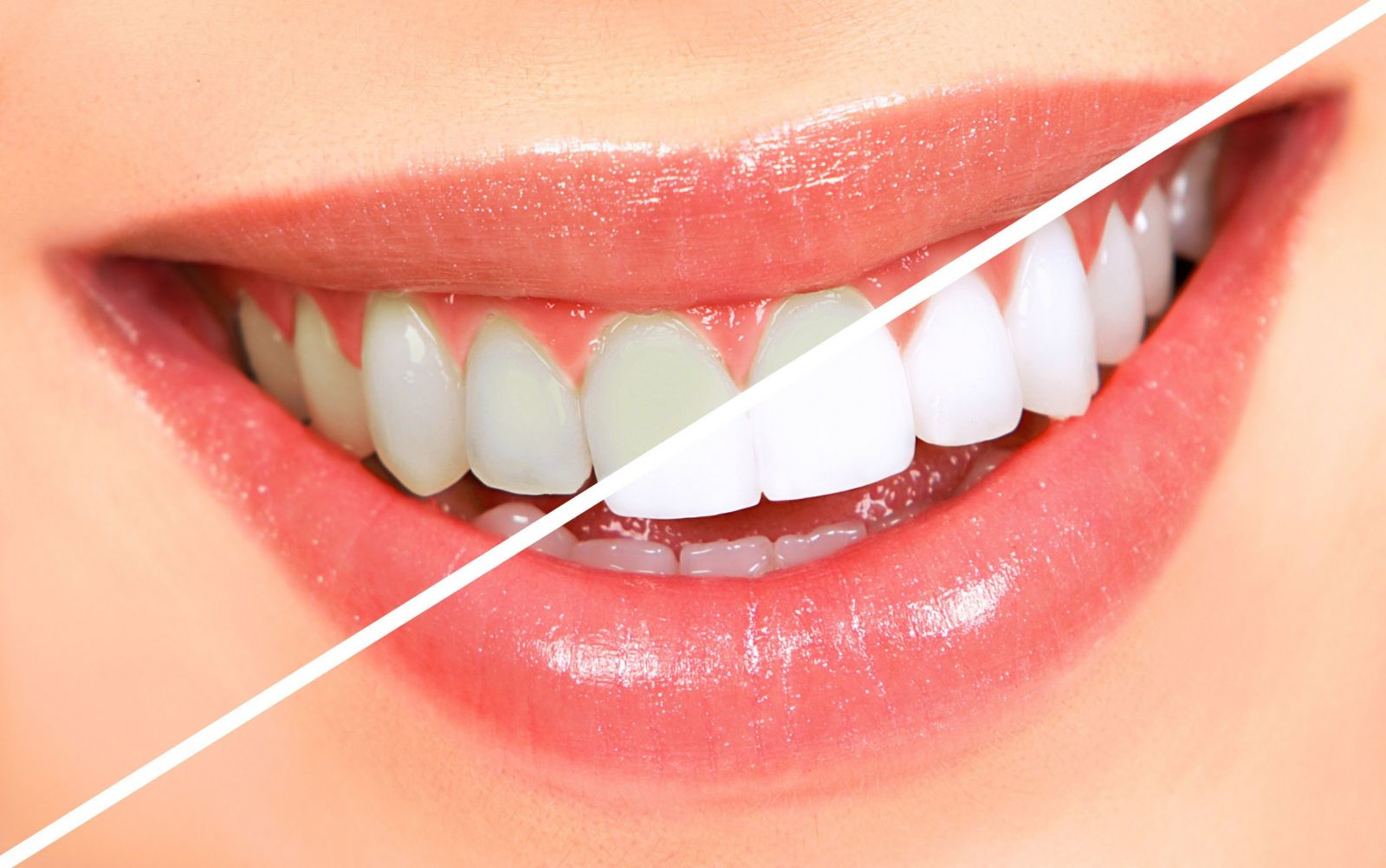 Hướng dẫn làm trắng răng tại nhà đơn giản và hiệu quả - Ảnh 3
