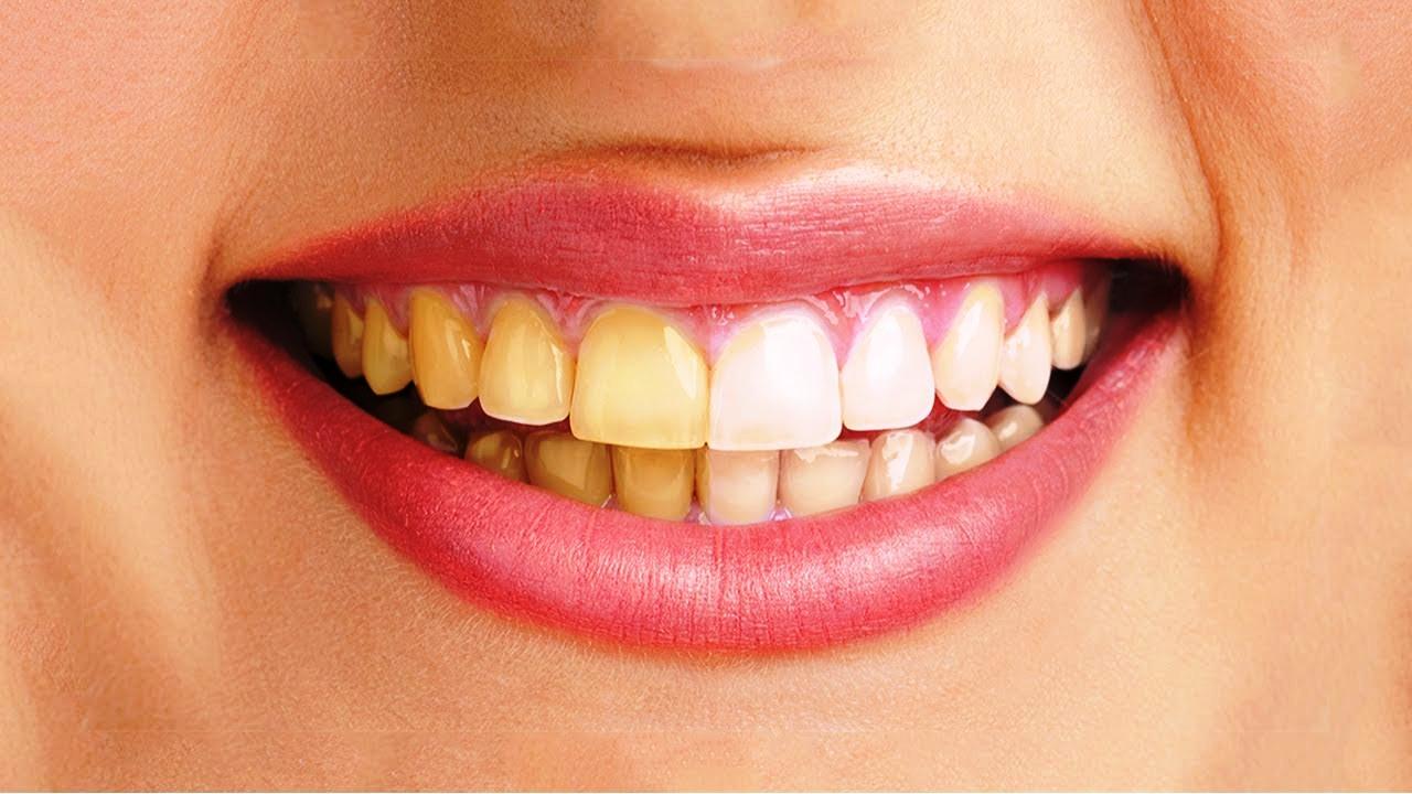 Hướng dẫn làm trắng răng tại nhà đơn giản và hiệu quả - Ảnh 2