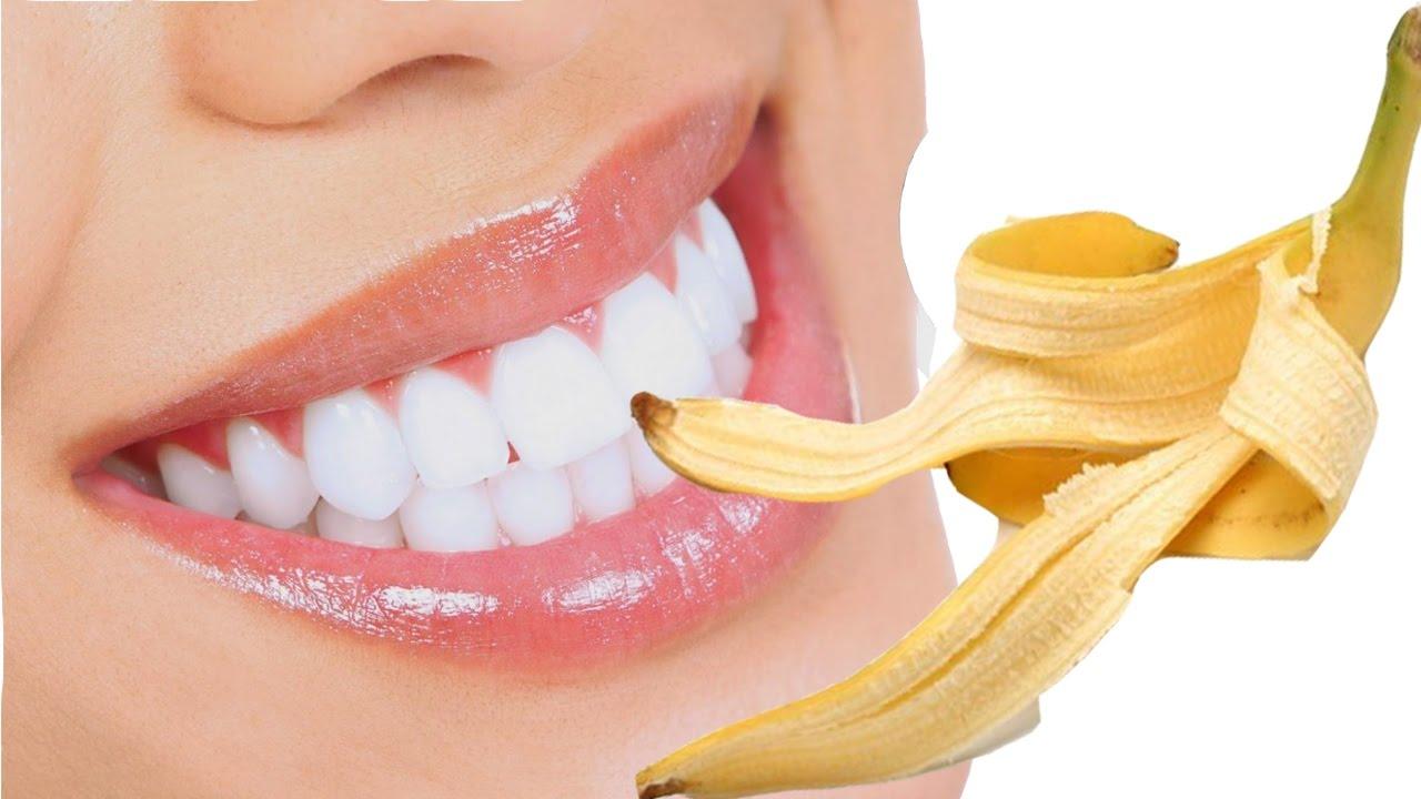 Hướng dẫn làm trắng răng tại nhà đơn giản và hiệu quả - Ảnh 5