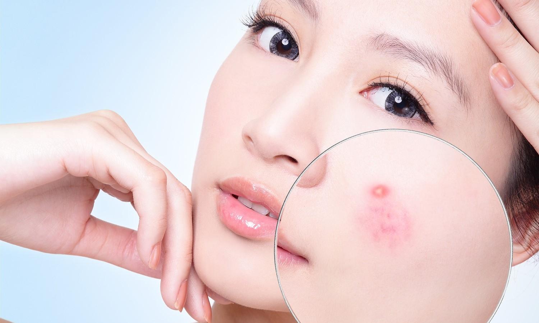 Tác dụng của vitamin B3 trong việc chăm sóc da cho phái đẹp - Ảnh 4
