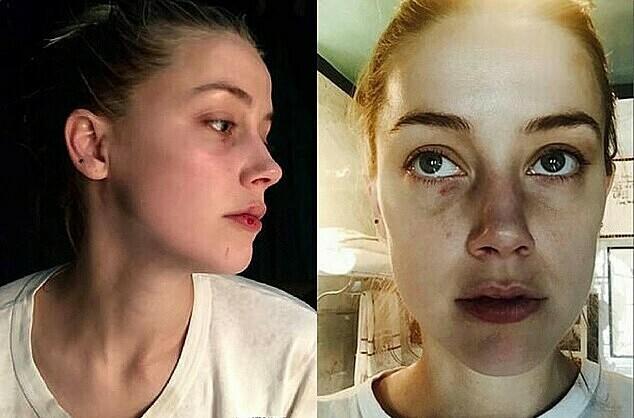 Amber Heard kể về 3 ngày bị Johnny Depp 'bắt làm con tin, dọa giết' - Ảnh 2