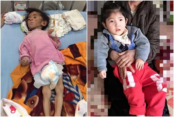 Đang béo trắng, bé Yến Nhi đột ngột co giật nhập viện, mẹ nuôi tiểu thư 9X lo lắng - Ảnh 1