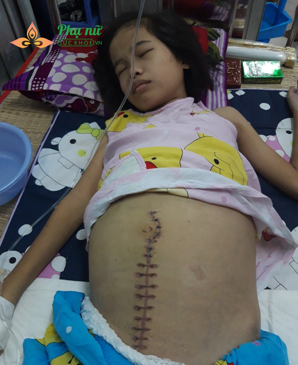 Ngày 13/5, các bác sĩ đã mổ sinh thiết ổ bụng, lấy mẫu tế bào xét nghiệm theo dõi sự tiến triển của bệnh, từ đó lên phác đồ hóa trị liệu phù hợp.