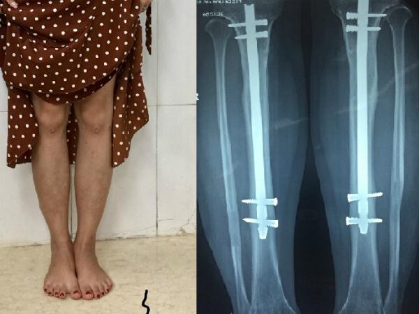 """""""Hội nấm lùn"""" rộ mốt phẫu thuật kéo dài chân, kỳ 2: Hành trình của gian khổ và nghị lực  - Ảnh 3"""