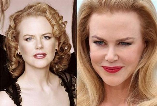 Nicole Kidman trở nên già nua với khuôn mặt cứng đơ