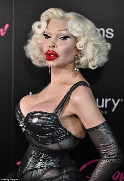 Không hiểu vì lí do gì mà người mẫu chuyển giới Amanda Lepore lại quyết định phẫu thuật thẩm mỹ cho chiếc mũi và đôi môi đã khá hoàn hảo của mình.