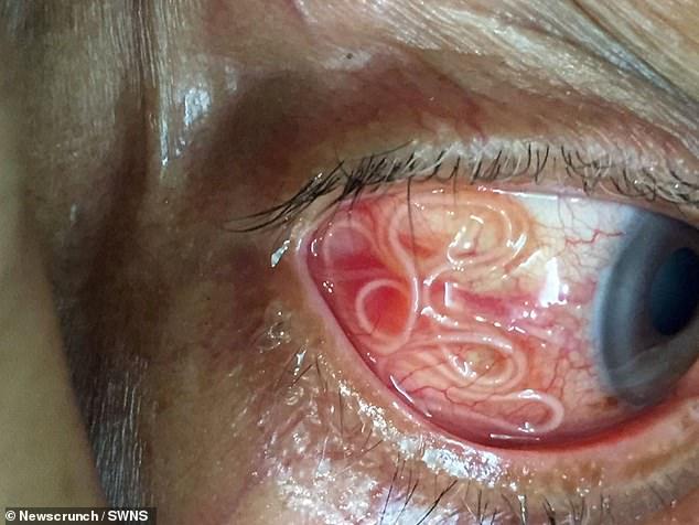 Bác sĩ phát hiện ký sinh trùng dài đến 15cm trong mắt người bệnh. Ảnh Daily Mail.