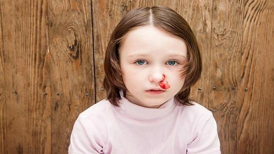 Nguyên nhân chảy máu cam ở trẻ nhỏ và cách xử trí - Ảnh 1