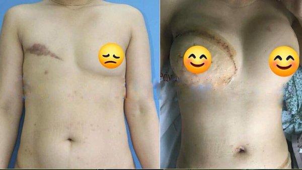 Người phụ nữ nhiều năm phải nhét giẻ vào ngực vì lý do đau đớn - Ảnh 1